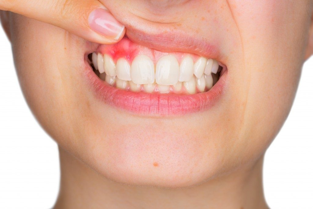 woman having a gum recession